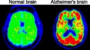 AlzheimersBrainScan